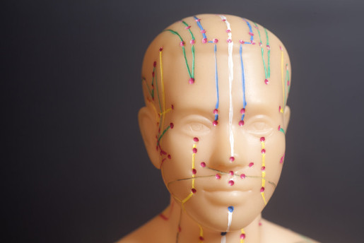 YNSA New Scalp Acupuncture